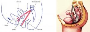 nogyogyaszati-inkontinencia-02